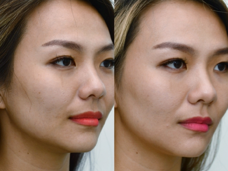 Pico laser is the latest technology for removing pigmentation
